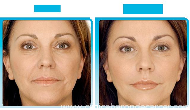 Antes y después del tratamiento con botox