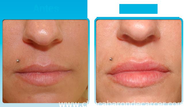 Aumento de labios con acido hialurónico antes y despues del tratamiento