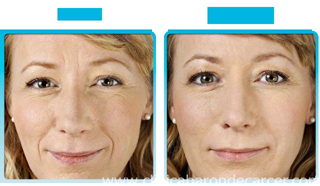 Antes y despés del tratamiento de mesoterapía facial.