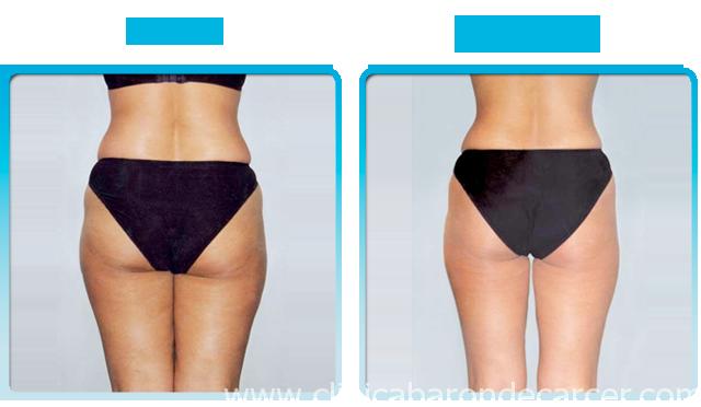 Antes y después del tratamiento corporal con presoterapia