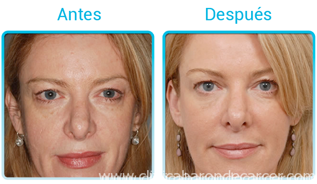 Antes y después de la remodelación facial