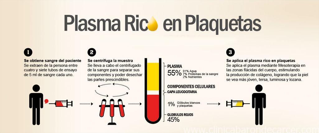 Proceso del tratamiento de plasma rico en plaquetas