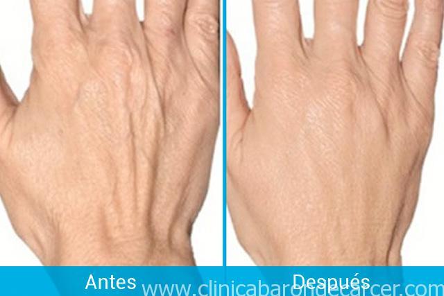 Tratamiento de manos con plasma rico en plaquetas en Valencia