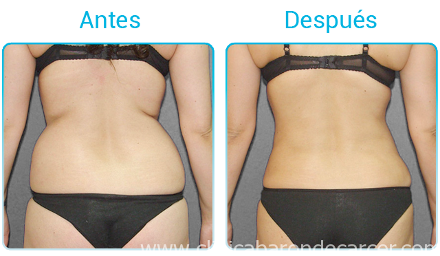 Antes y después del tratamientos de mesoterapia corporal