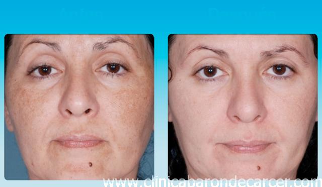 Tratamiento de peeling quimico antes y despues