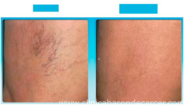 Antes y después del tratamiento de varices esclerosis.