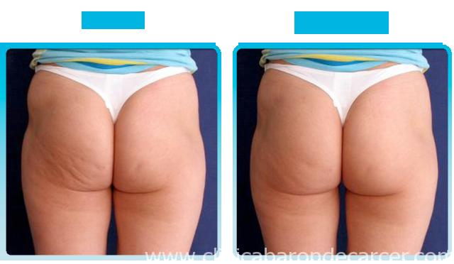 Antes y después del tratamiento con ultrasonidos en valencia - Clínica Barón de Cárcer