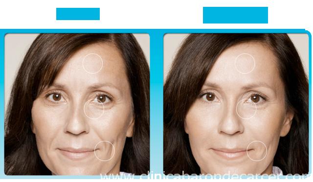 Antes y después del tratamiento con radiofrecuencia