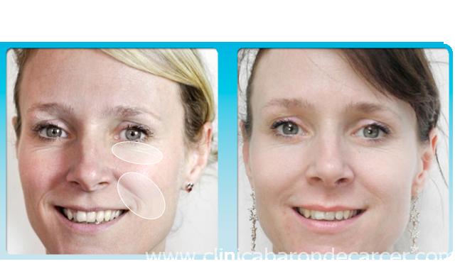 Antes y después del tratamiento con el Roller