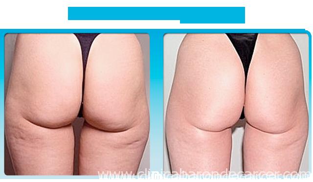 Antés y depsués del tratamiento con Alidya