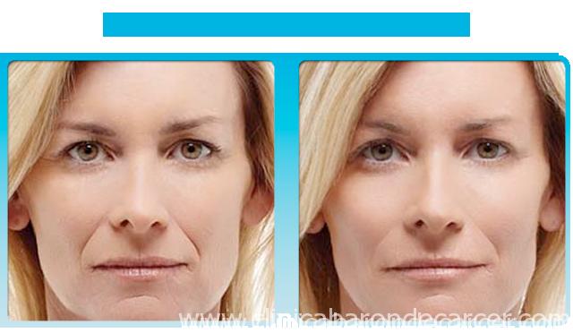 Antes y después del tratamiento con radiesse