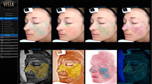La tecnología de CANFIELD, incluye TruSkin AGe, una aplicación que calcula la edad relativa de la piel del paciente en función del estado general de su piel.
