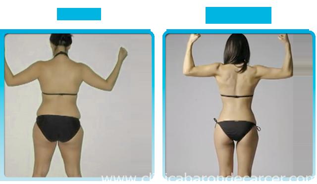 Antes y después del seguimiento de nutrición y adelgazamiento