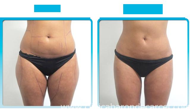 Antes y después del tratamiento corporal con Aqualyx