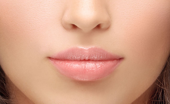 Aumento de labios con Botox, Toxina Botulínica, despues