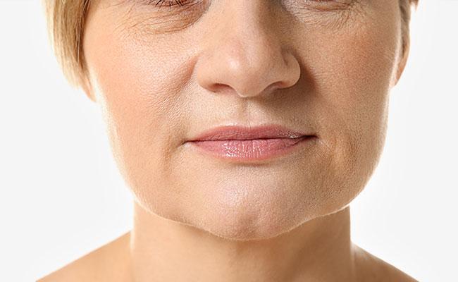 Tratamiento facial con mesoterapia virtual - Antes
