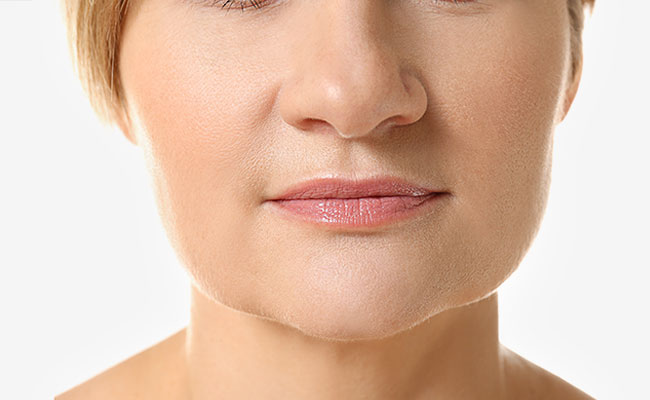 Tratamiento facial con mesoterapia virtual - Despues