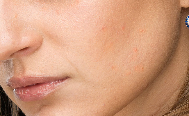 Tratamiento de luminosidad facial - Antés
