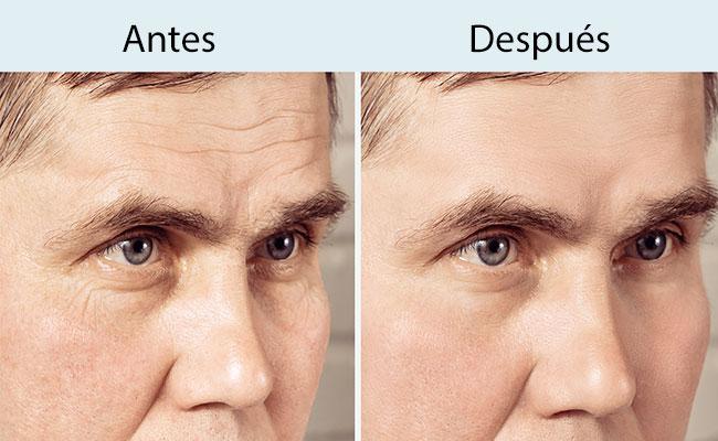 Tratamiento toxina botulínica tipo A en Valencia