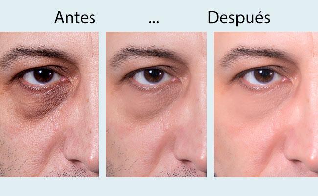 tratamiento ojeras antes y despues