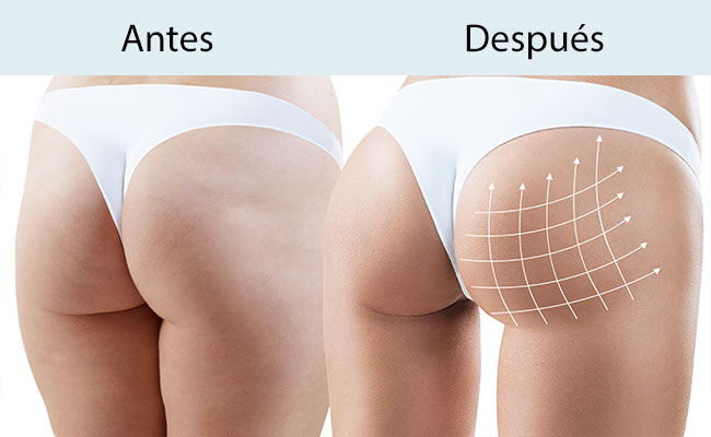 Tratamiento reafirmante de glúteos en Valencia